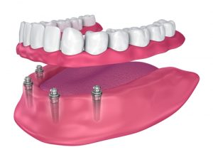 visual model of full-arch denture being secured with four dental implants